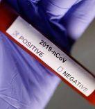Rum tarafında koronavirüs alarmı