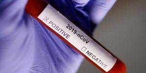 PCR sonuçları  çıkana kadar karantina